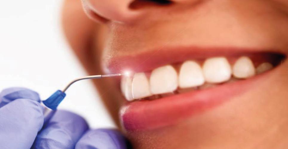Curso teórico práctico aplicaciones laser en odontologia